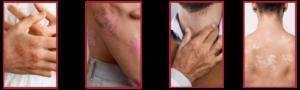 Łuszcząca się skóra - Jakie choroby mogą ją powodować?