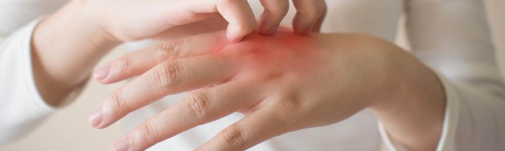 Łuszcząca się skóra – o jakich chorobach może świadczyć?